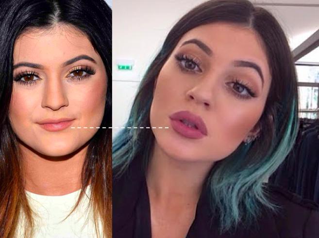 comparando a boca antes e depois Kylie Jenner